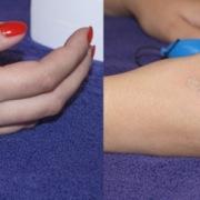 Odstranění tetování 4